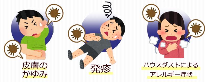 アレルギー症状